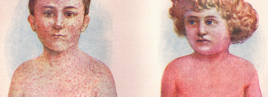 Una enfermedad del siglo XIX regresa con una fuerte intensidad de propagación