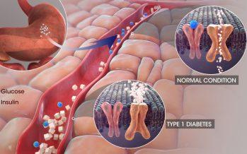 Diabetes mellitus, cuando el azúcar empalaga la sangre