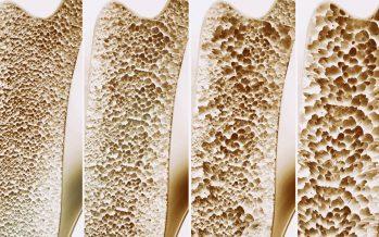 La contaminación del aire también afecta a la calidad de los huesos