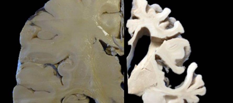 Para diagnosticar en vida, enfermedades neurodegenerativas, la UNAM creó el Biobanco Nacional de Demencias